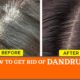 How to get rid of dandruff: 7 natural remedies